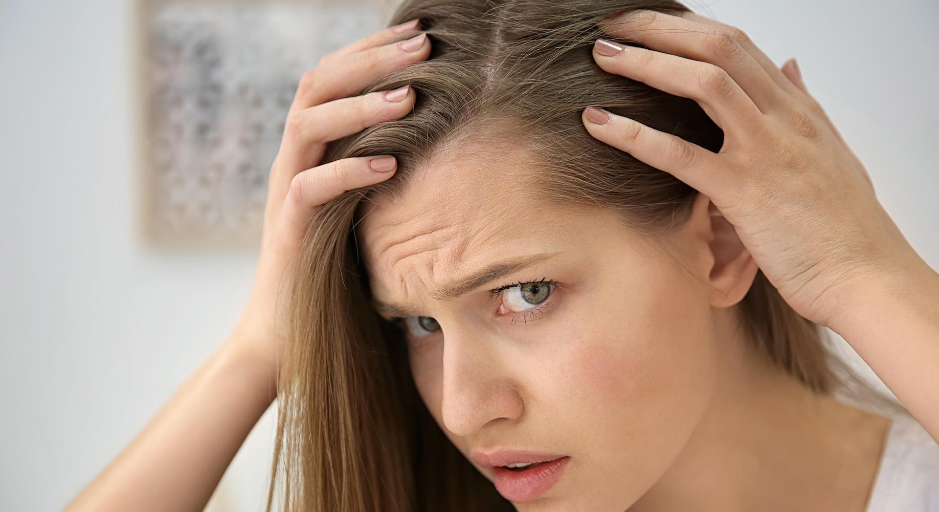 cure contro la perdita di capelli